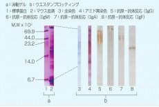 Transfer Protein/Hybridization Membrane Filter
